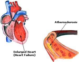Cause and effect essay about heart disease